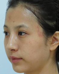 case2-手術前